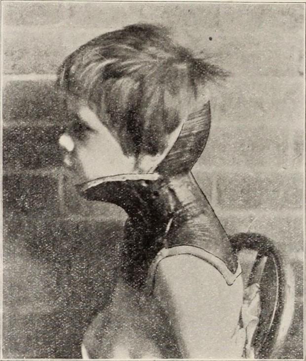 """Collar para lesiones cervicales. Del """"St. Louis courier of medicine"""" (1899)"""