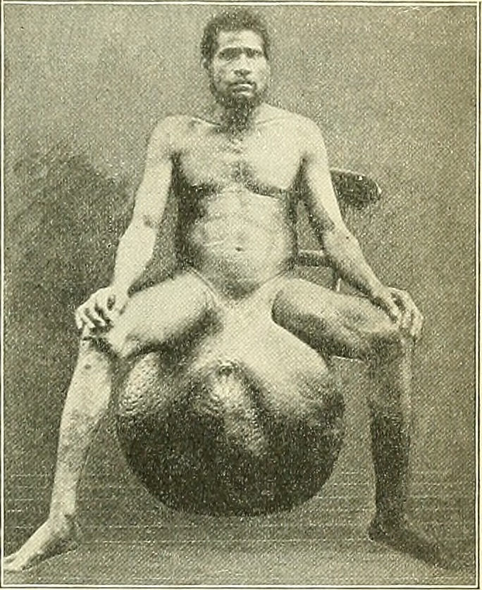 Nativo de las islas Fiji con elefantiasis en el escroto, 1898