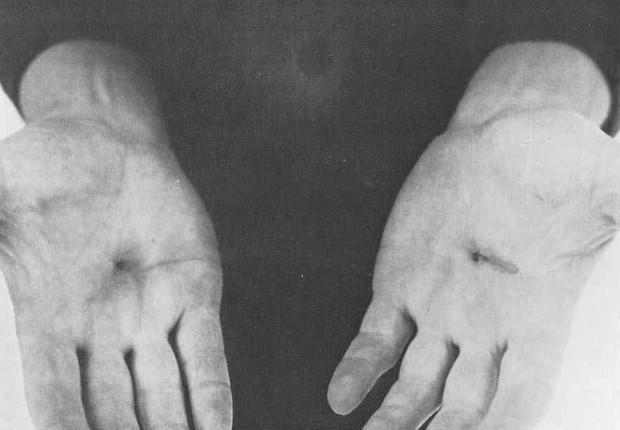 Las manos agujereadas de Burden