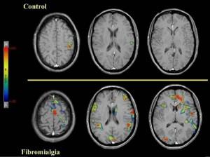 Escaner de fibromialgia