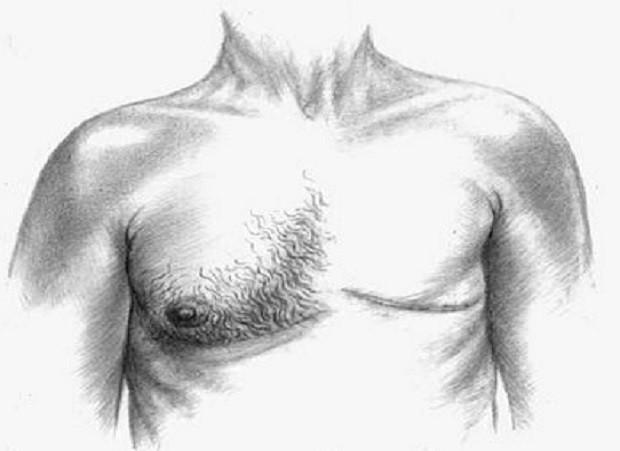 ¿Sabías que el cáncer de mama también puede afectar a los hombres?