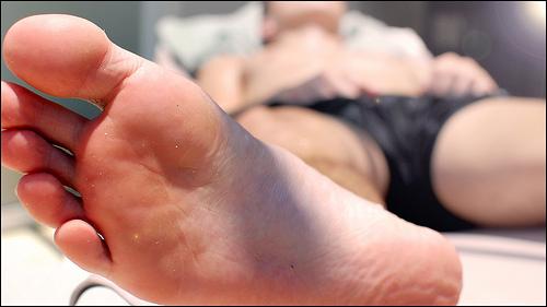 Varicela en la planta de los pies