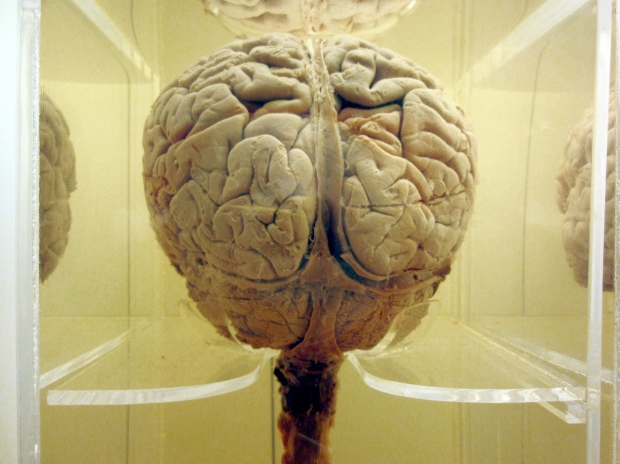 ¿De dónde surge el mito que indica que sólo utilizamos el 10 por ciento de nuestro cerebro?